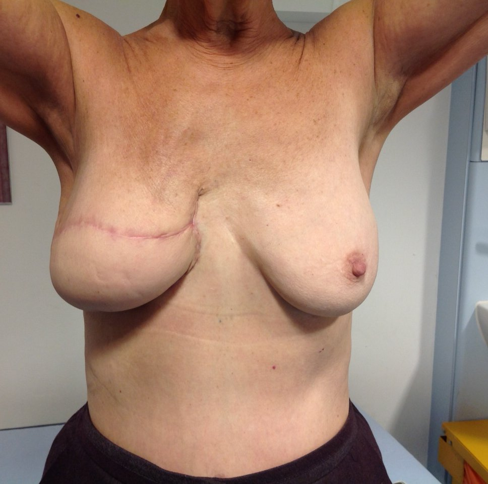 naturalbreast3